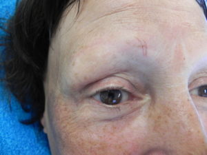 Irma Hulscher Alopecia Voor de behandeling