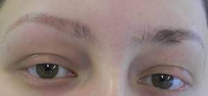 Alopecia wenkbrauwen voor