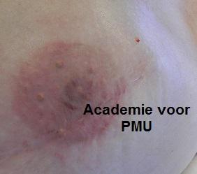 Areola Medische Pigmentatie